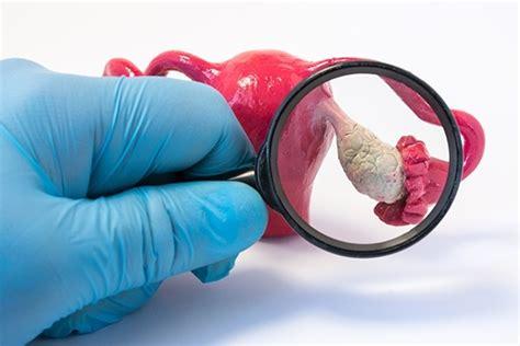 chisturi ovariene dr diana mihai tratament cauze simptome
